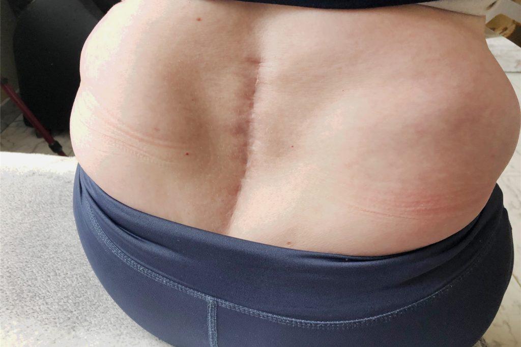 Die Dorstenerin hat mehrere Wirbelbrüche bei dem Unfall erlitten. Eine lange Narbe an der unteren Wirbelsäule deutet auf die operativen Eingriffe hin.