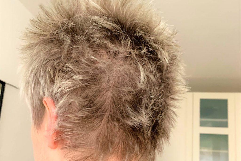 Kerstin Brentrop wartet sehnsüchtig auf die Wiedereröffnung der Friseure. Sie hat schon selbst geschnippelt, ist aber alles andere als zufrieden mit dem Ergebnis.
